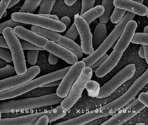 Creative Commons/Rocky Mountain Laboratories. Scanning electron micrograph of Escherichia coli, grown in culture and adhered to a coverslip
